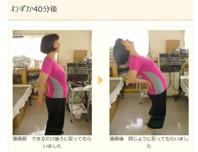 施術前の写真と施術後の写真 腰がそれるようになった写真