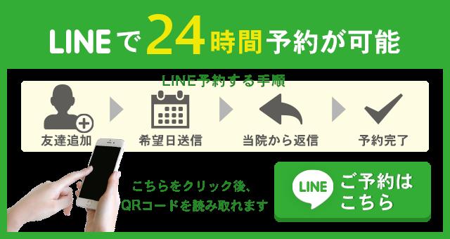 24時間LINE予約受付手LINE予約のやり方のイラスト